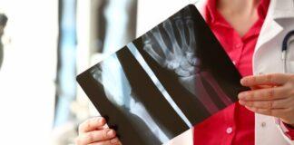 radiologa tiene in mano lastra raggi X
